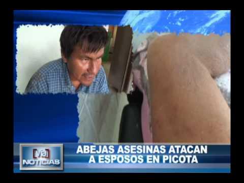 Abejas asesinas atacan a esposos en Picota