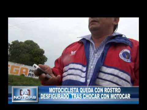 Motociclista queda con el rostro desfigurado tras chocar con Motocar