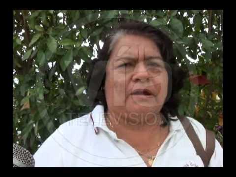 Paciente con cáncer de Cacatachi viajará a lima para tratamiento