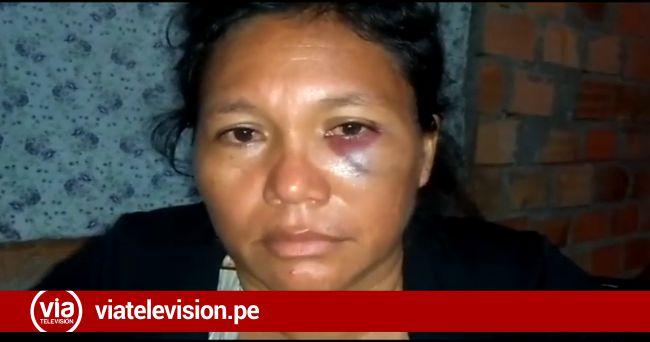 La Banda de Shilcayo: mujer denuncia agresión por parte de su hermano