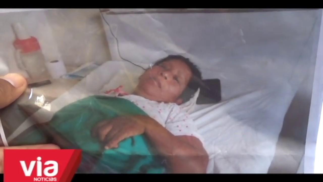 Tarapoto: mujer con tumor de más de un kilo clama apoyo solidario