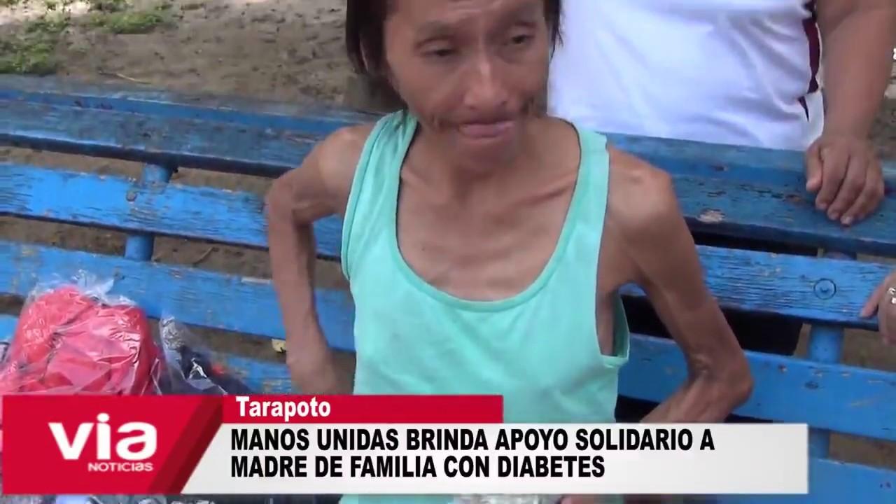 Manos Unidas brinda apoyo solidario a madre de familia con diabetes