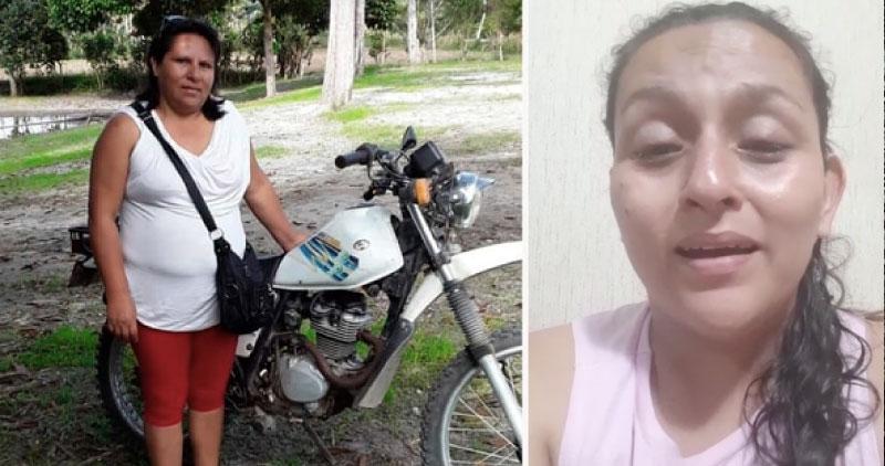 Mujer que fue quemada en Rioja ahora padece de muerte cerebral
