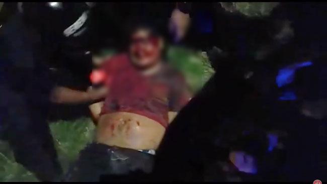 Morales: motociclista resulta herido tras despiste de su vehículo