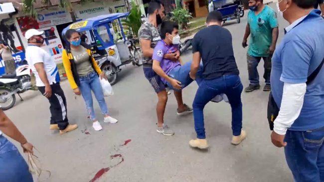 Tarapoto: choque de moto y auto  deja un herido en el barrio Huayco