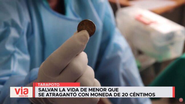 Salvan la vida de menor que se atragantó con moneda de 20 céntimos